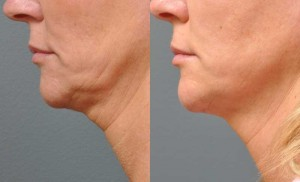Ultherapy of the lower face