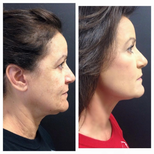 Full face Ultherapy