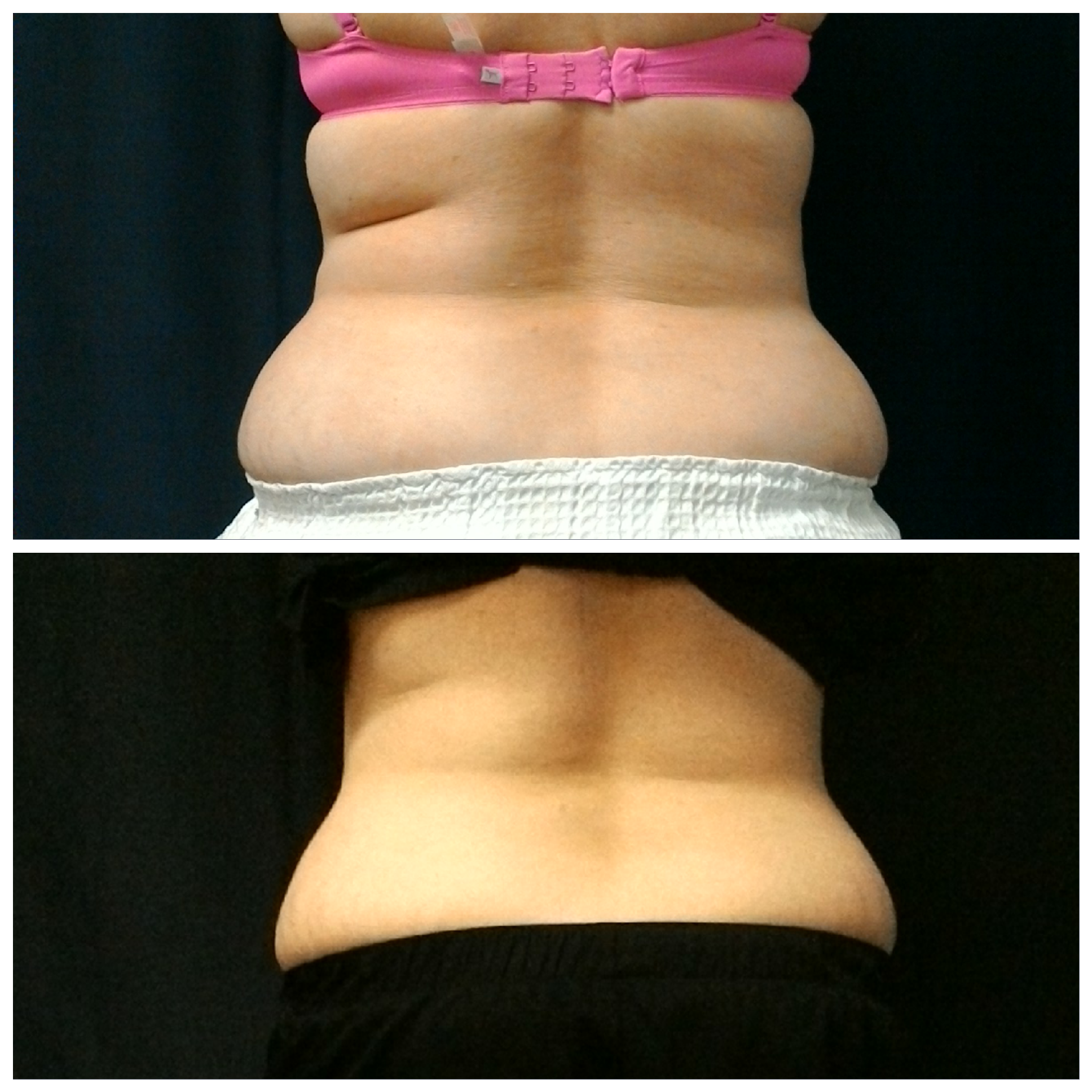50 year old female after one treatment of SculpSure
