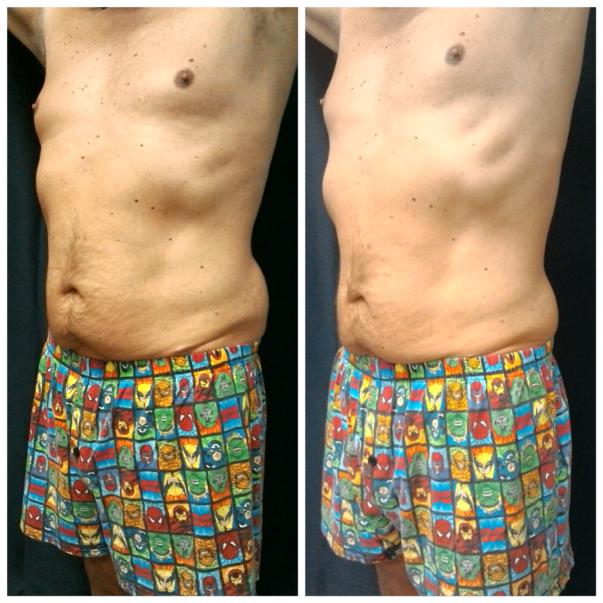 54 year old male 6 weeks after one treatment of flanks and lower abdomen.                            4 inches lost with SculpSure