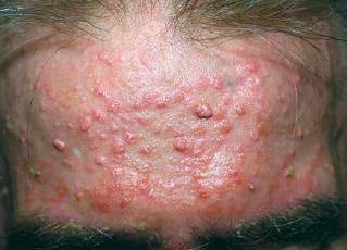 sebaceoushyperplasia 3.jpg