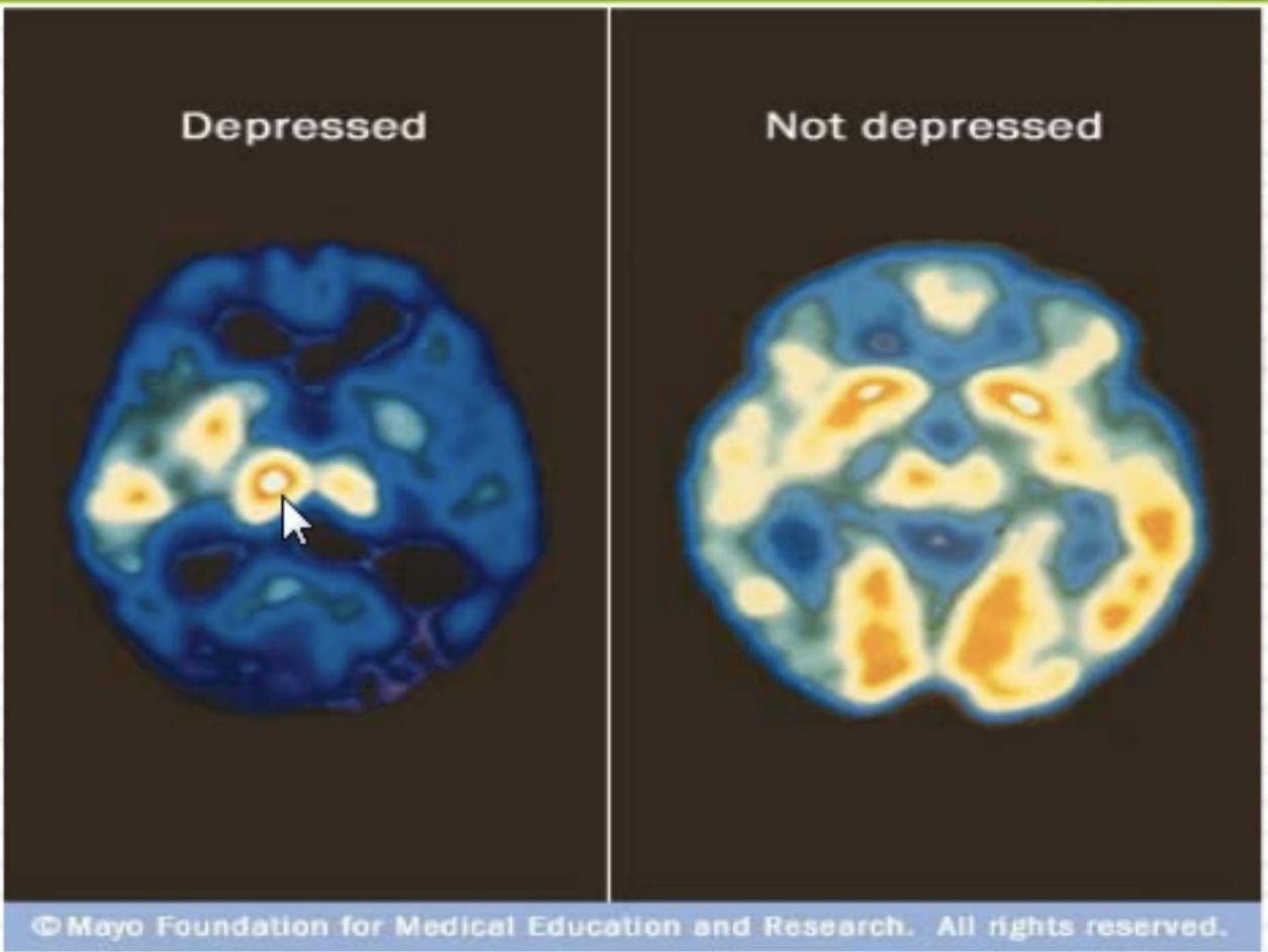 Ayurveda & Depression