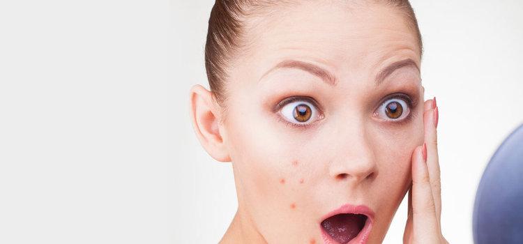 behandling af tilstoppede porer og fedtet hud med acne og bumser