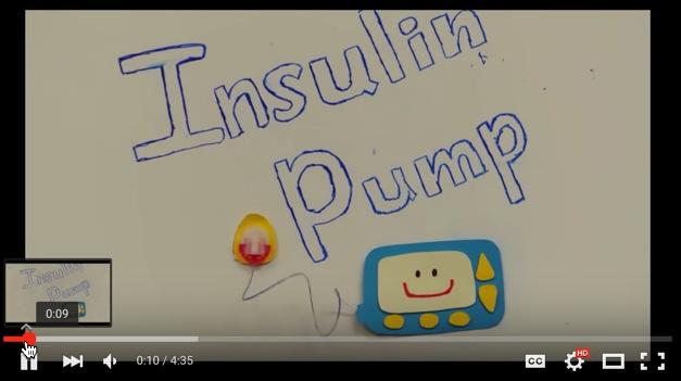 Insulin Pump Video for Mott Pediatric Diabetes