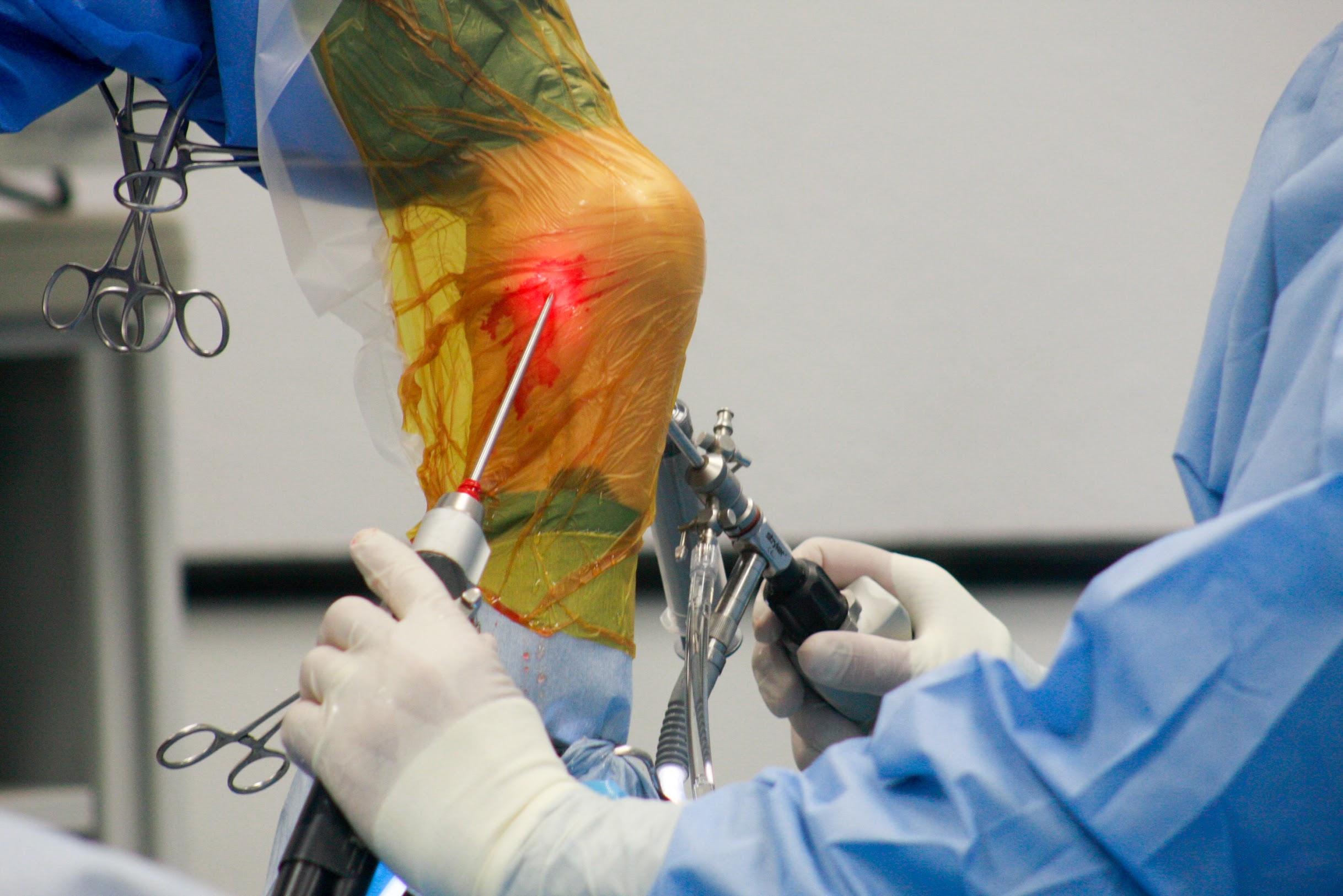 Surgery ty arthoscopy 2.JPG