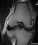 Stifle MRI 2.jpg