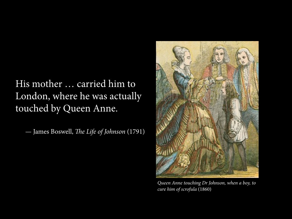 """""""His mother … carried him to London, where he was actually touched by Queen Anne."""""""