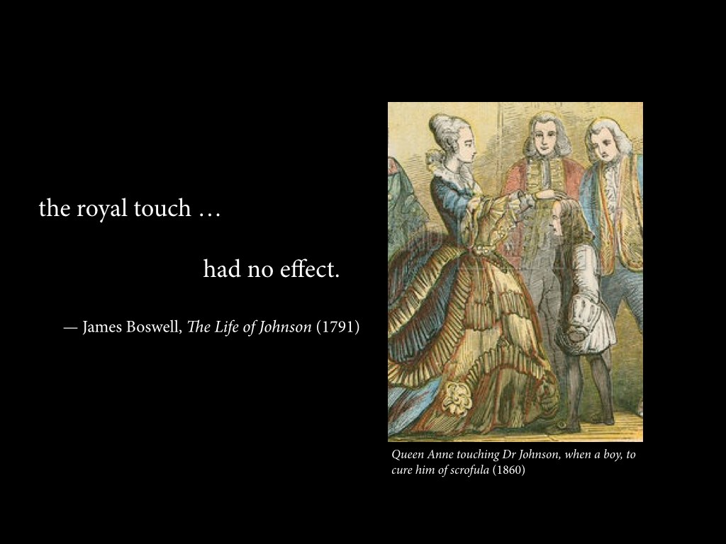 """""""The royal touch … had no effect."""""""