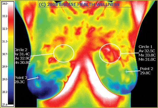 Breast Thermogram.jpg