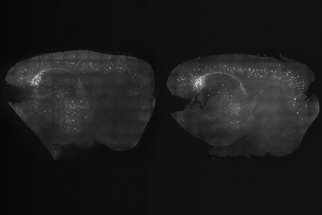 By exposing mice to a unique combination of light and sound, MIT neuroscientists have shown that they can improve cognitive and memory impairments similar to those seen in Alzheimer's patients. At left, the mouse cortex shows a reduction in amyloid plaques following visual and auditory stimulation, compared to the untreated mouse at right. Image: Gabrielle Drummond