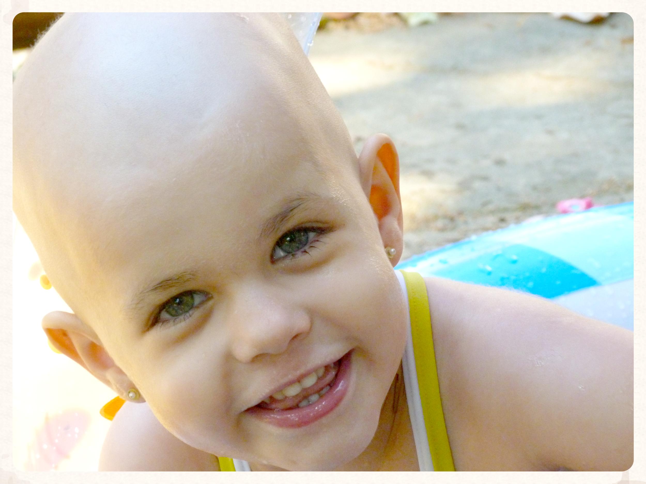 Anita Sanchiz Amado a los 3 años  - la razón de ser de la Asociación Benéfica.