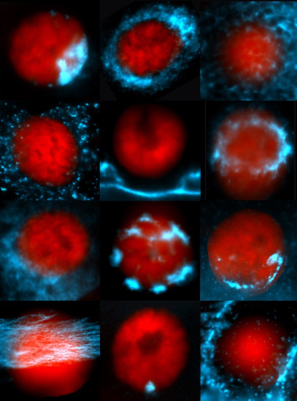 A glimpse into the breadth of RNA (in blue) distributions within cells. Nuclei are in red