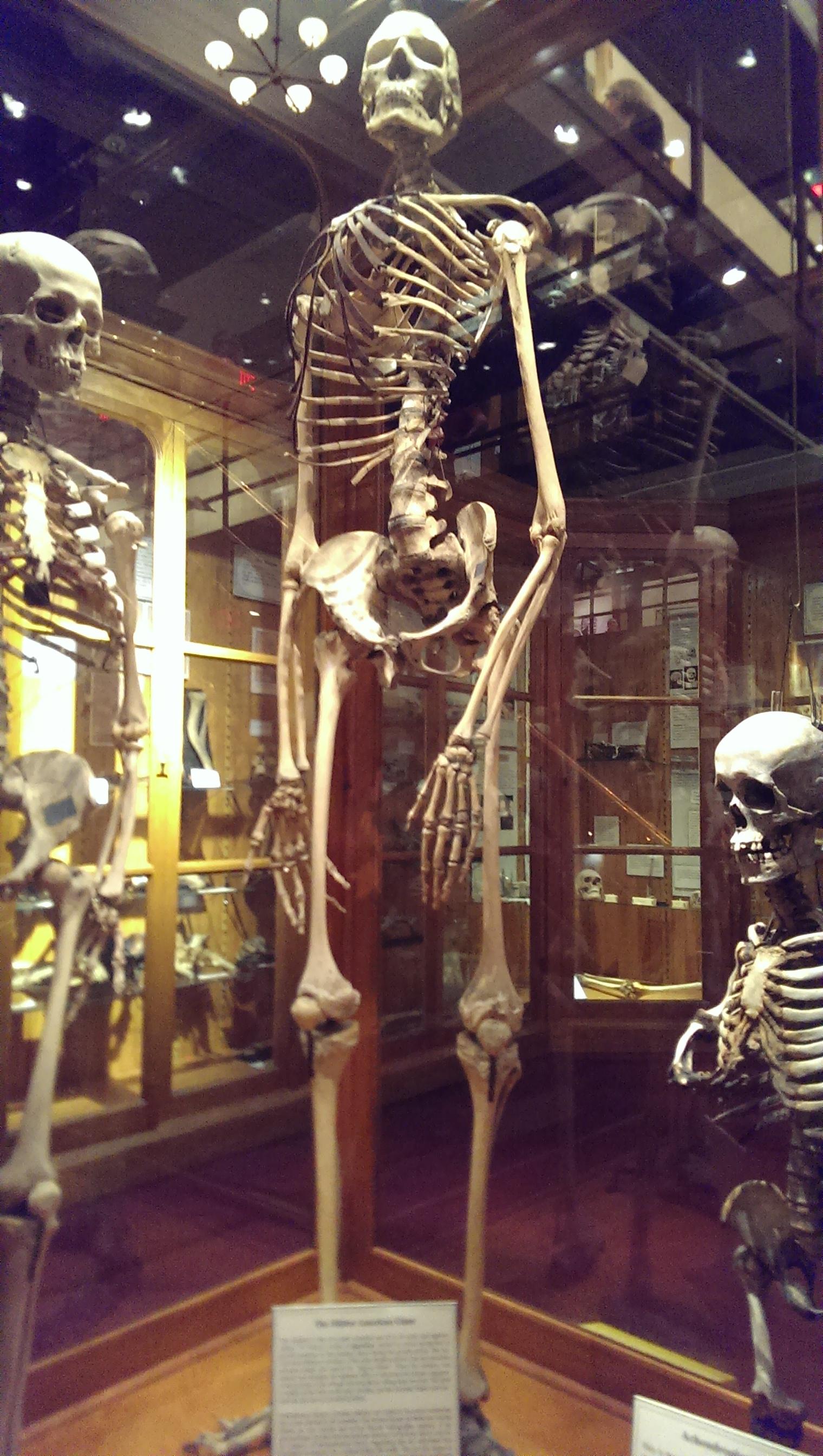 mutter museum gigantism
