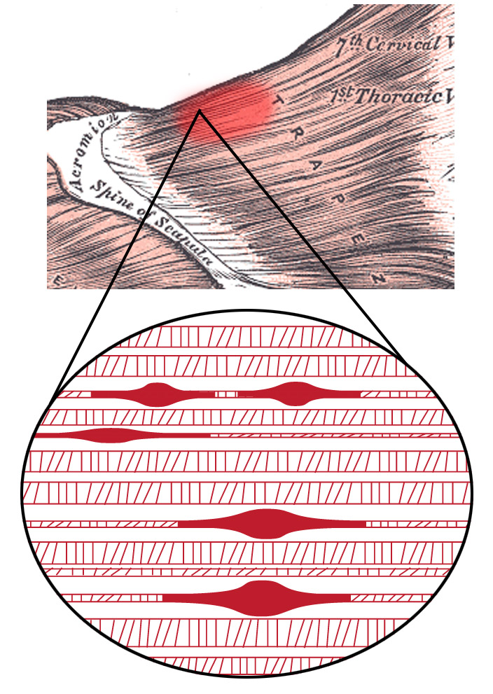 Neuromuscular Trigger Point