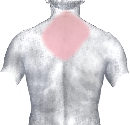 Central upper trapezius muscles can become painful. Myofascial Release can help reduce pain and increase mobility.