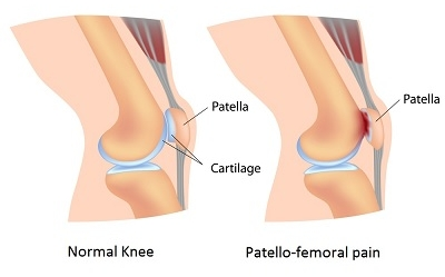 patellofemoral-pain-syndrome.jpg