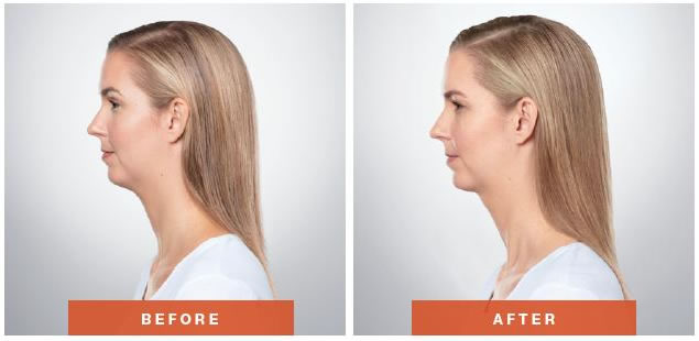 kybella-before-after-4-2pic.jpg