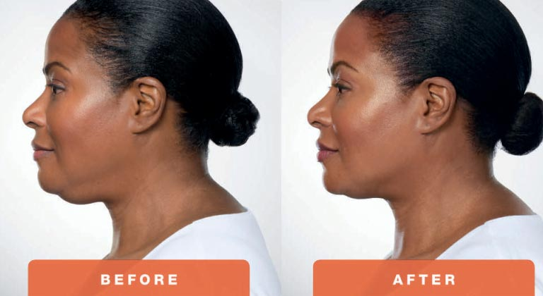 Kybella-Treatment-Before-and-After-Picture.jpg