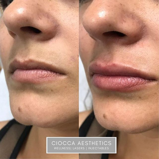 Just a little more definition on that upper lip and soft, subtle smoothing and plumping!  Don't you love how customizable lips are? 💋 ✨ Product: Juvederm Ultra 1 cc. ✨ Results: Real results are shown after swelling has diminished ✨ Duration: 25 minutes ✨ Anesthesia: Topical Numbing Cream *Results may vary from one patient to another*  #medspa #miami #kendall #cioccadermatology #cioccaaesthetics #skin #cosmetics #lips #fillers #injectables #allergan #juvederm #beauty #skincare