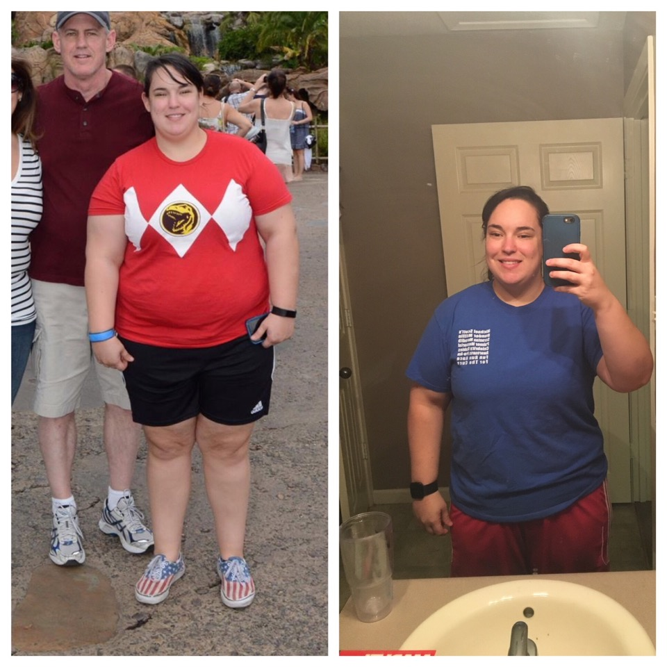 Before / After losing 40 lbs