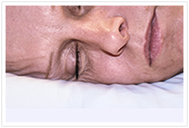 Compression, shear and tension forces damage our facial skin whilst we sleep
