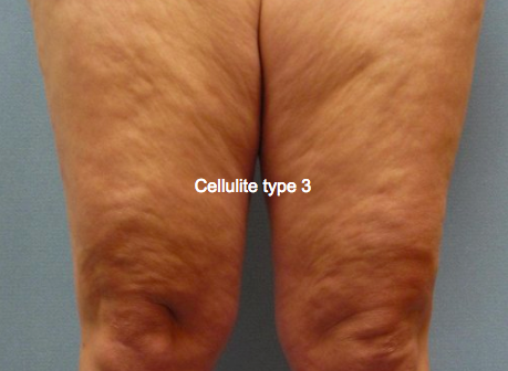 cellulite type 3 gua sha massage krop ben lår arme
