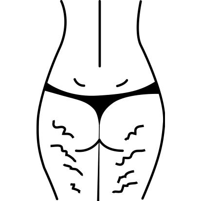 """Cellulite type 3 - """"Gele"""""""