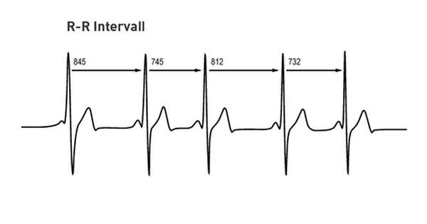 EKG_RR_Intervall.jpg