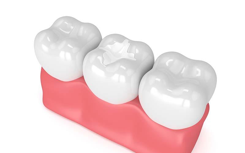 Tooth Fillings in Reno.jpg