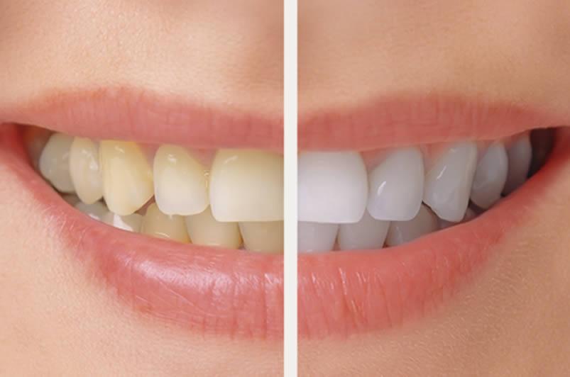 Teeth Whitening - Caughlin Crossing Dentistry.jpg