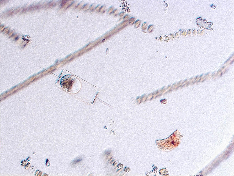 Plankton-11.jpg