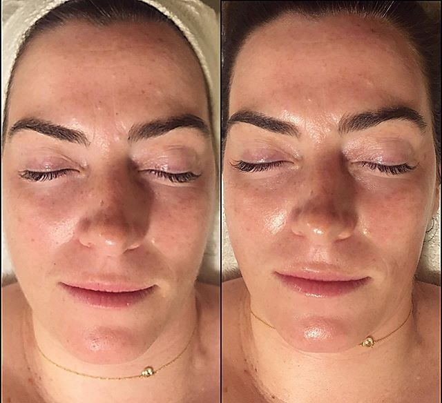That plump 💧 & glow ✨ though! Before and after custom facial with dermaplaning and microcurrent ⭐️ by Heather @theritualartist ———————————————————————— #facial #selfcare #selflove #esthetician #skincare #skin #sanjose