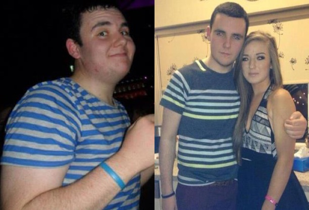 Darrach O'Brien Before and After