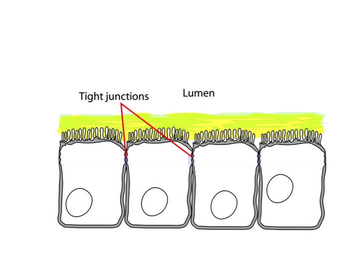 Small intestinal cells:  Without the tight junctions, leaky gut develops.