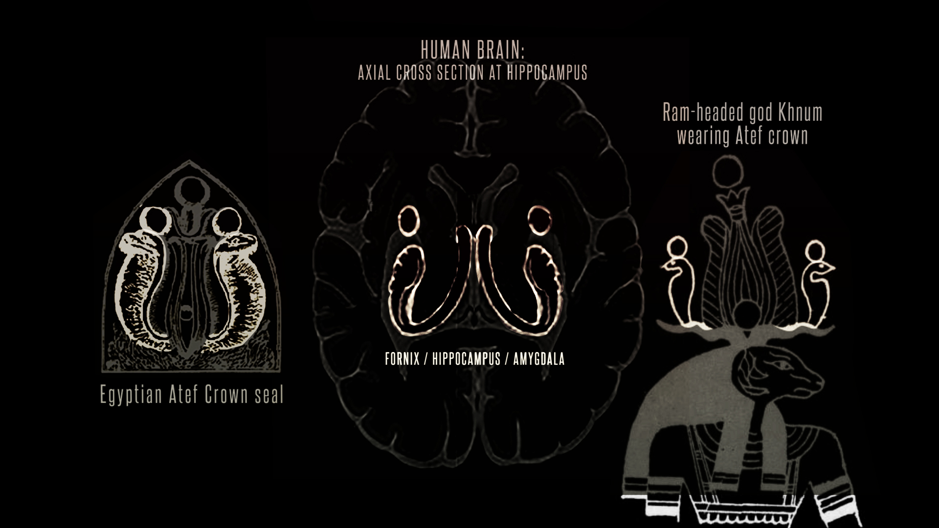 Brain Atef amygdala khnum triple comparison.jpg