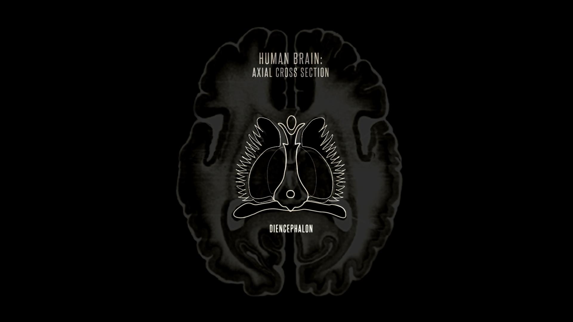 walnut brain only dienceph outline first.jpg