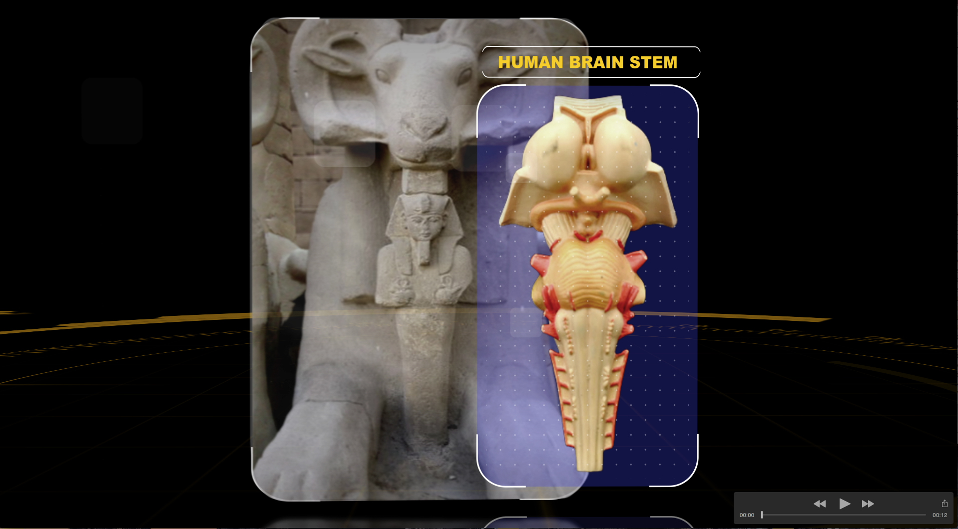 brain stem ram comparison.jpg
