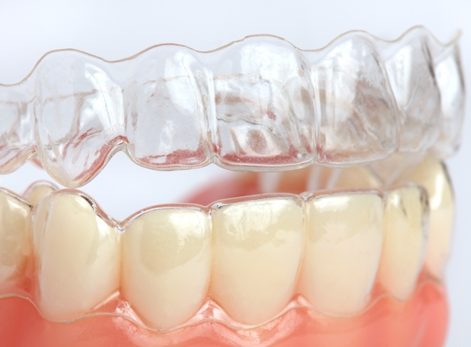 Clear Aligners - invisible braces.jpg