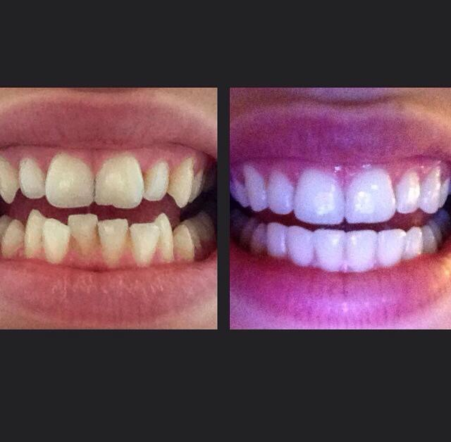before and after 9 months treatment with Smilelign
