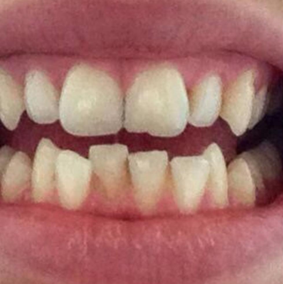 smilelign-teeth-straightening.png