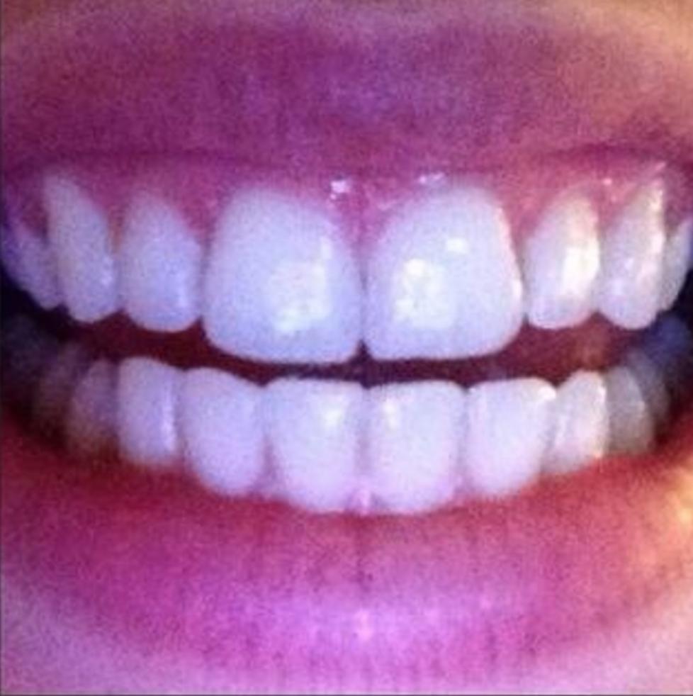 smilelign-super-results.png