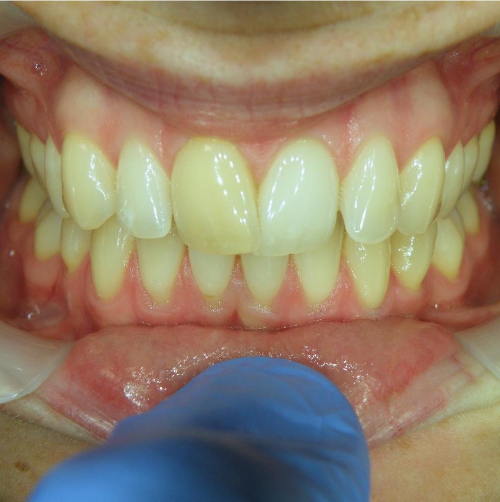 smilelign-teeth-before.png