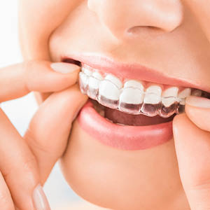 · Smilelign case (worth up to £975) – which includes the initial treatment plan and scan, the number of aligners necessary to complete the case, a dedicated technician on hand to discuss your case, refinements (if and when required).