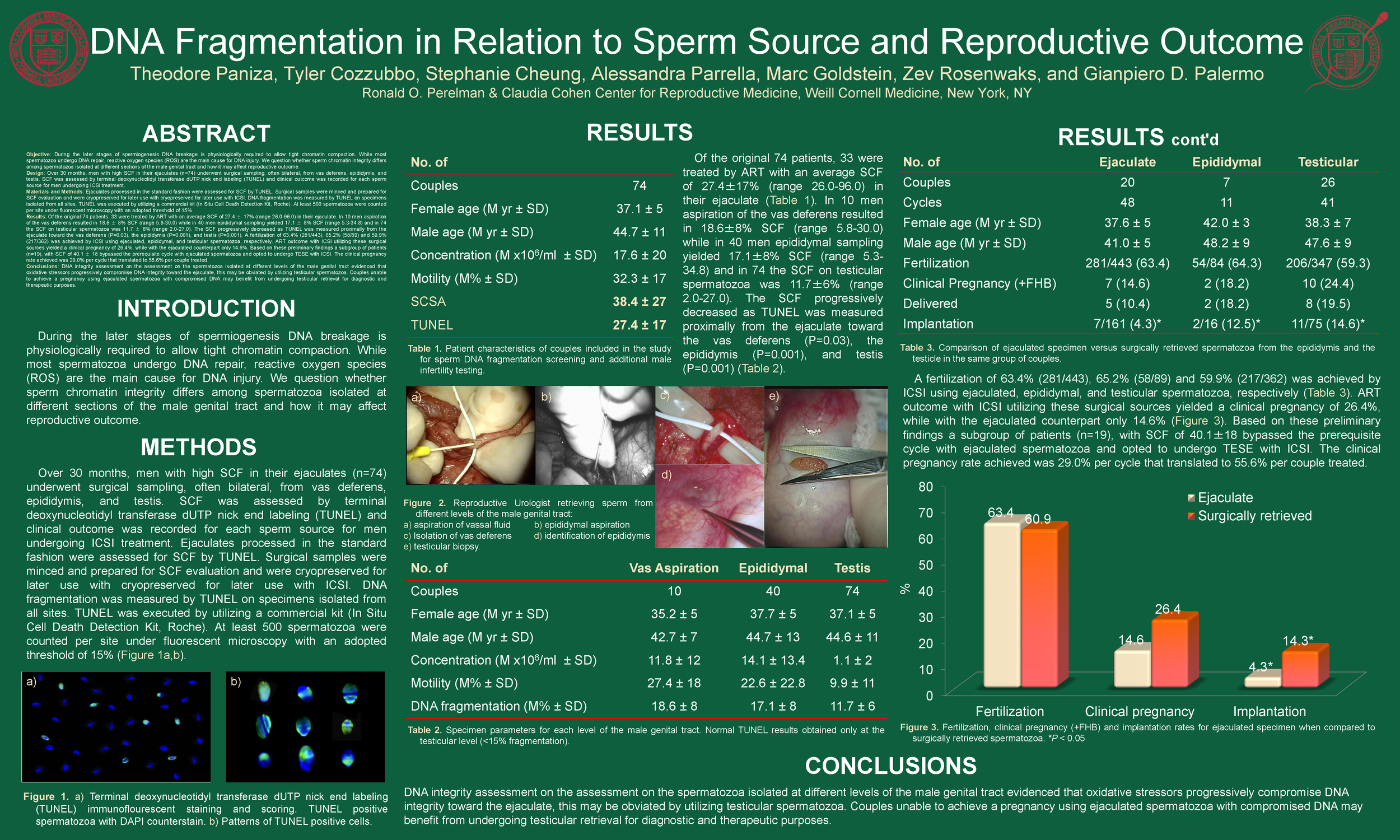 DNA Fragmentation in Relation to Sperm Source and Reproductive Outcome.png