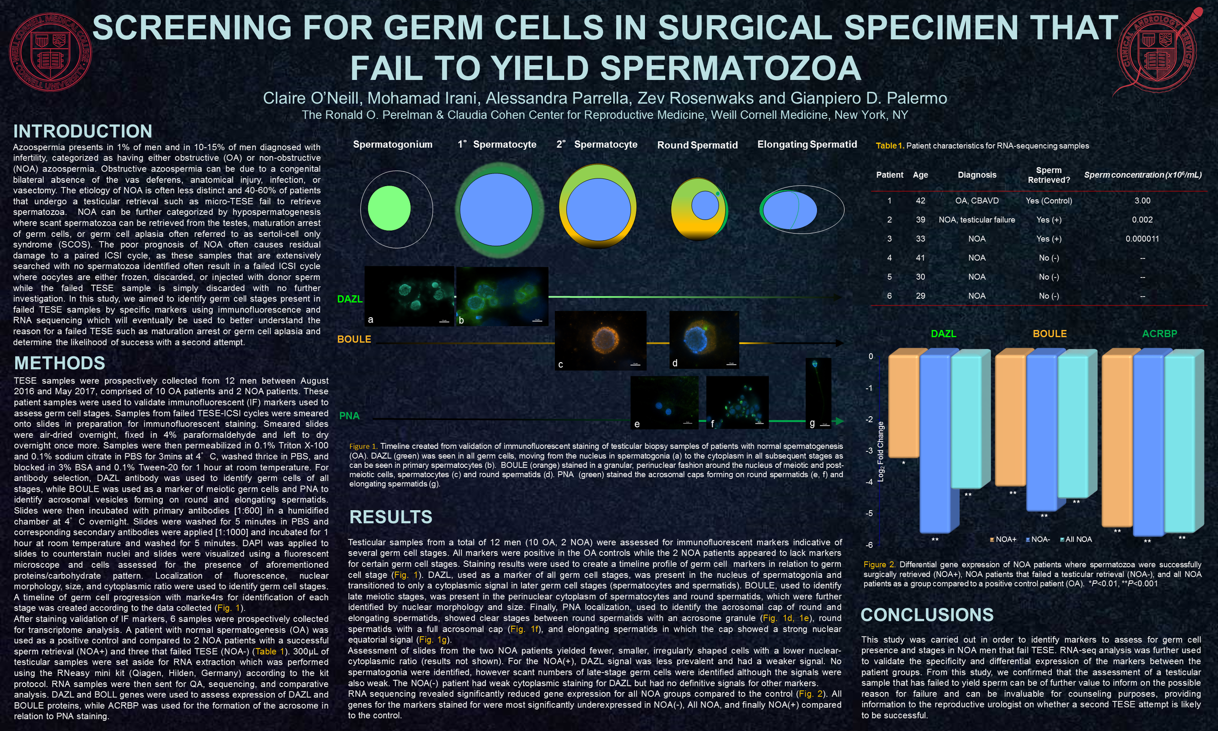 Screening for Germ Cells in Surgical Specimen that Fail to Yield Spermatozoa.png