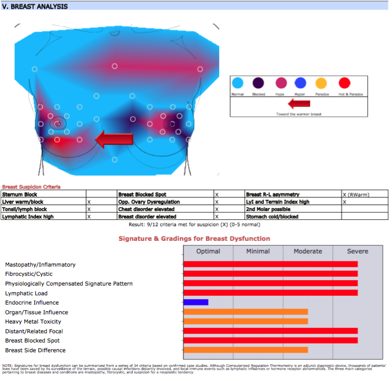 Initial Breast Thermography showing breast blockages and inflammation consistent with wearing a bra 24 hours a day.