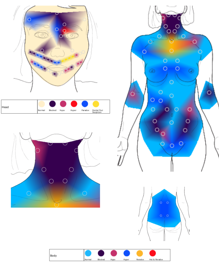 Initial Thermography Body scan