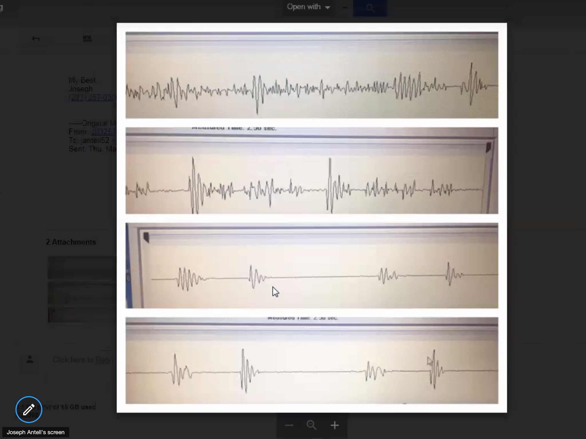 This is a Heart Sound Recorder with an IWatch and then without the IWatch - the difference is astonishing!