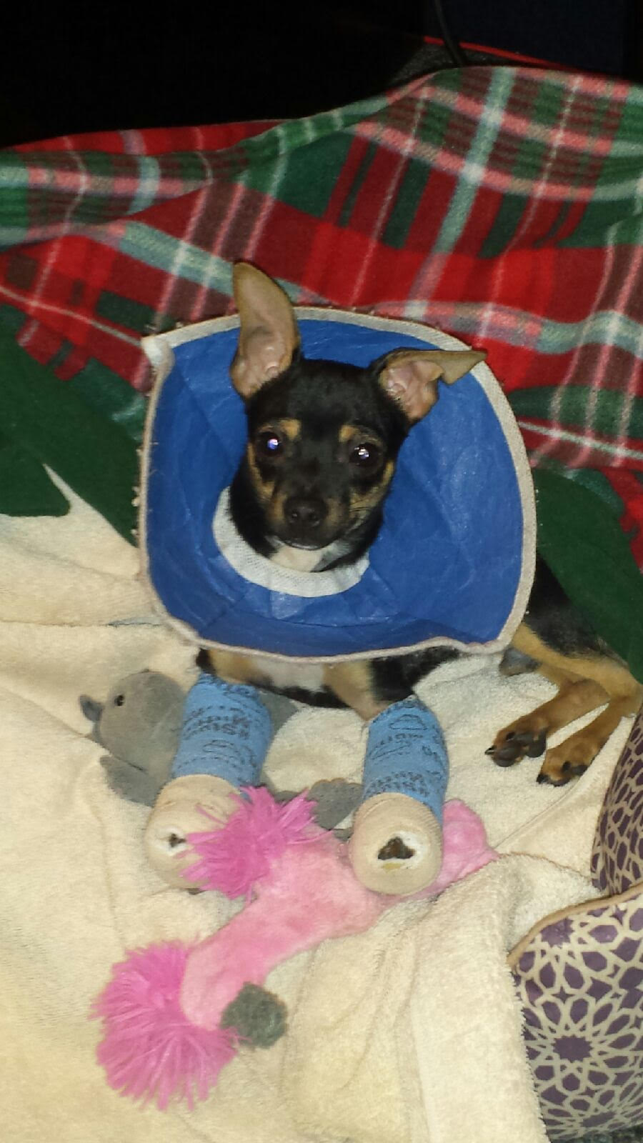 Little Bearito after his first splint change.