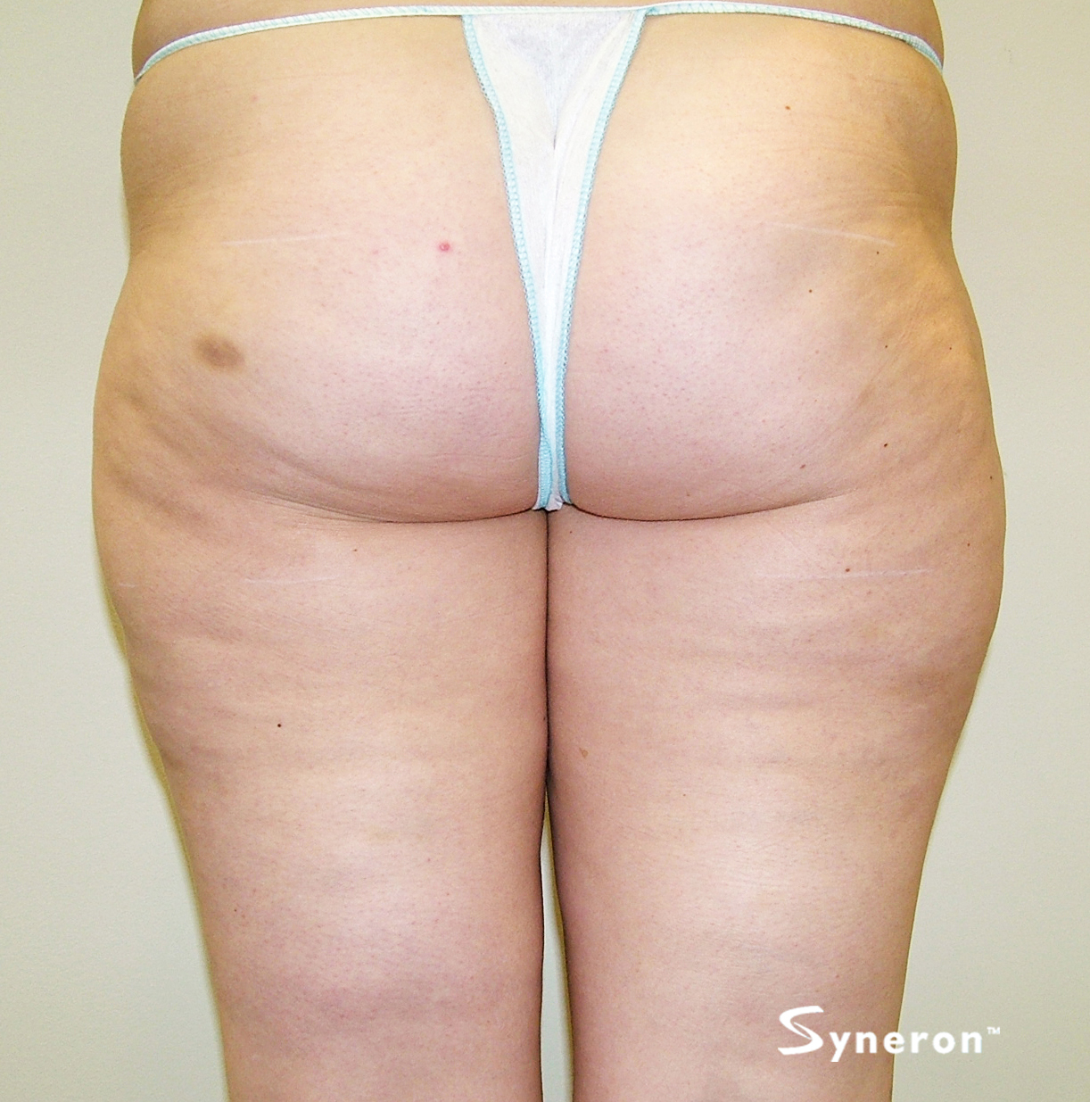 VelaShape_002_Dr.Boey_After-2-Treatments.jpg